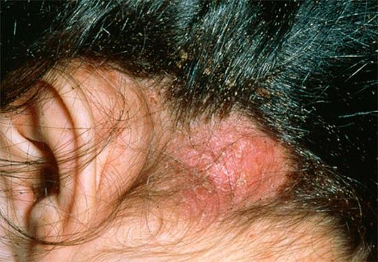 Avec un grand nombre de poux sur le cuir chevelu peuvent apparaître des croûtes.