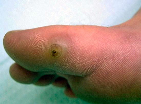 Les puces de sable sont capables de pénétrer dans la peau, entraînant une inflammation grave et dangereuse.