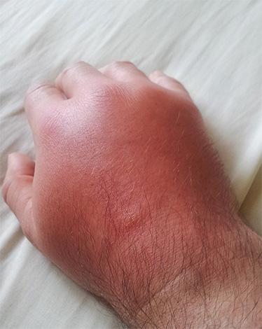 Gonflement du bras après la morsure de frelon