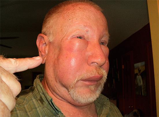 Tumeur au visage après la morsure de frelon