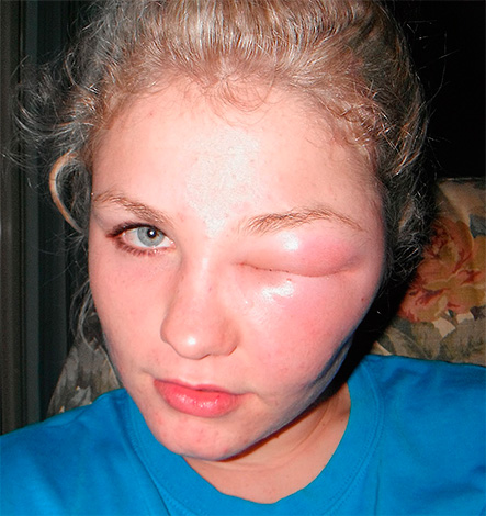 Lorsque les piqûres d'abeilles, de guêpes et de frelons dans la paupière ou à proximité immédiate de l'œil, il se ferme souvent complètement en raison du fort gonflement des tissus affectés par le poison.