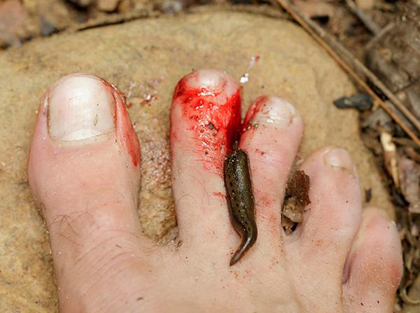 Les morsures de sangsue s'accompagnent généralement de saignements abondants et prolongés.
