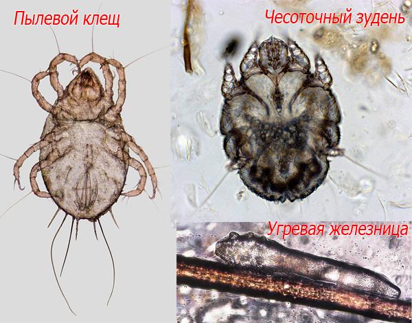 C'est ainsi qu'un acarien, une démangeaison et un fer à repasser sont examinés au microscope.