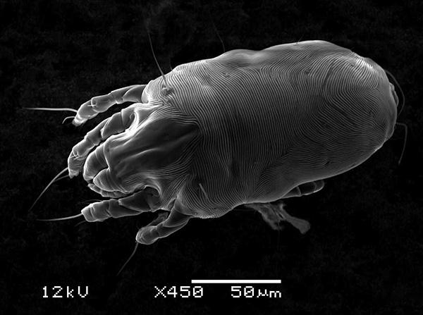 Et cette photo a été prise à l'aide d'un microscope électronique à balayage.