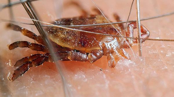 L'infection n'est possible que lorsque le parasite mord, et s'il rampe sur la peau, c'est sans danger.